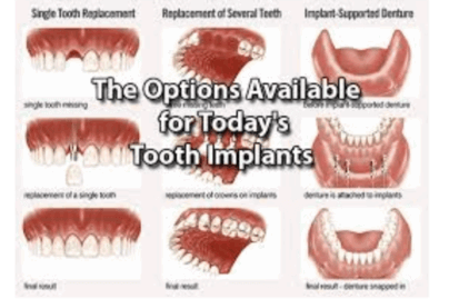 multiple options for dental implants