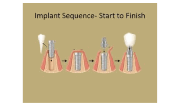 dental implant sequence of events