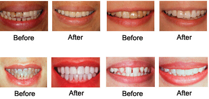 What is Cosmetic Dentistry & How It Helps Your Smile
